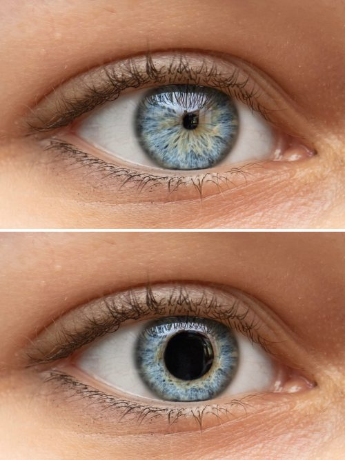 Variable Pupillengröße